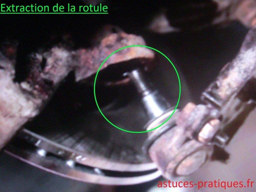 Extraction de la rotule