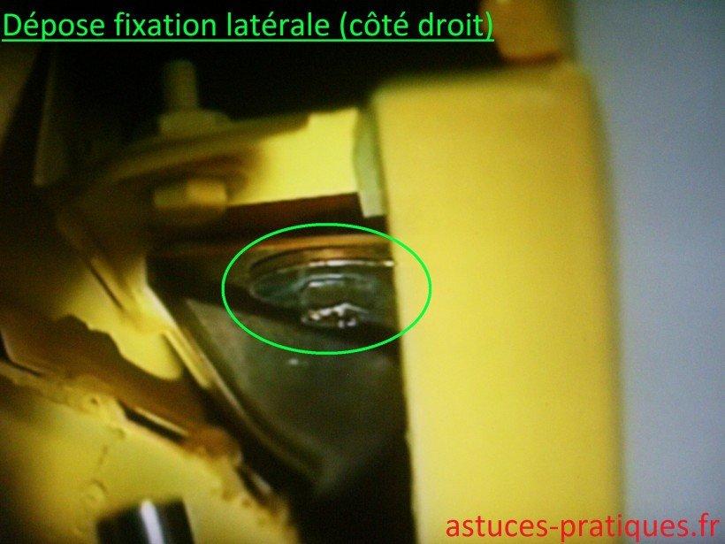 Fixation latérale (côté droit)
