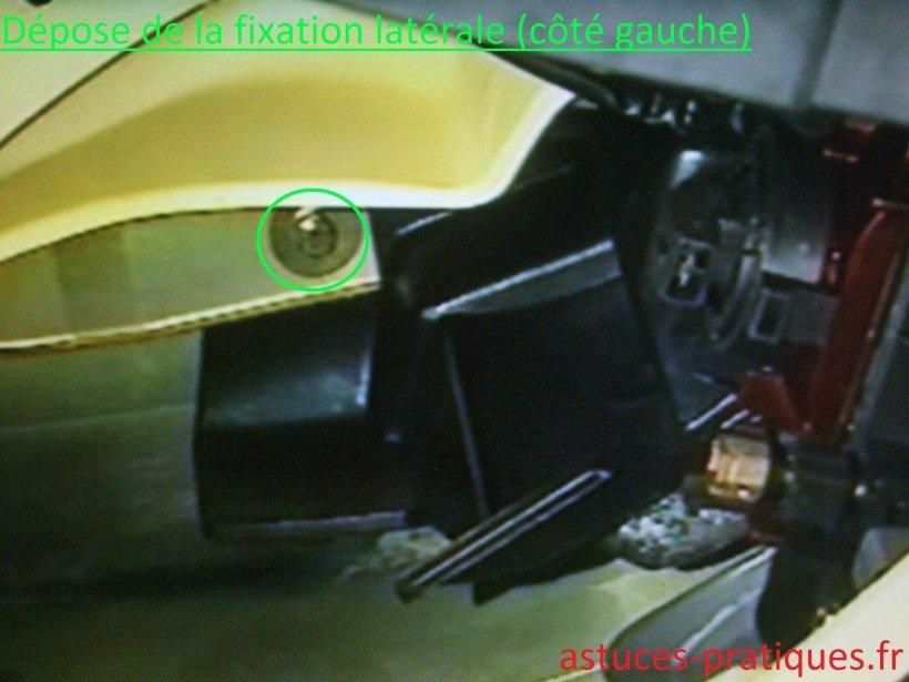 Fixation latérale (côté gauche)