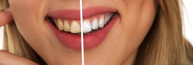 bicarbonate dangereux dents