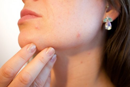 maquiller cicatrices acne