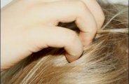 reduire le psoriasis ou crise du cuir chevelu 0
