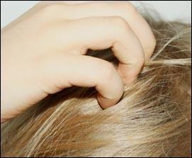 Reduire le psoriasis ou crise du cuir chevelu
