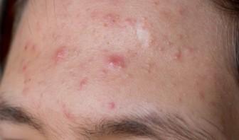 comment se debarasser de l acne 0