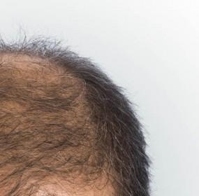 perte de cheveux 0