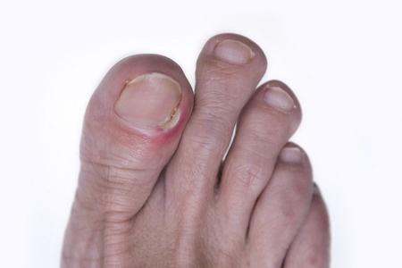 soigner un ongle incarne 0