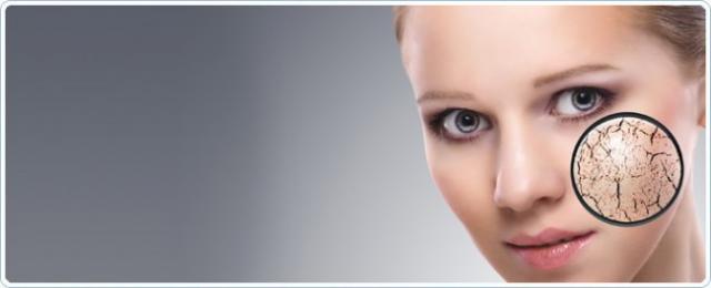 Conseils : prendre soin de votre peau sèche et/ou déshydratée