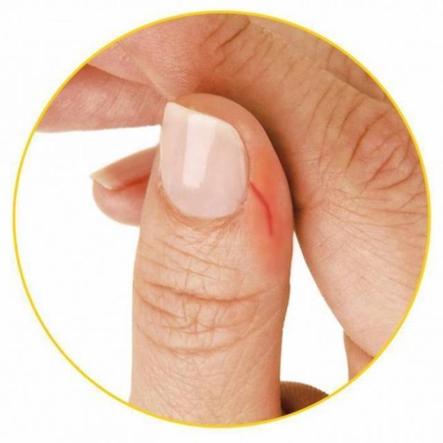 Réduire l'afflux de sang après une coupure
