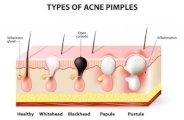 que faire en cas d acne d adulte 0