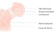 Que faire en cas de fracture du col du fémur?