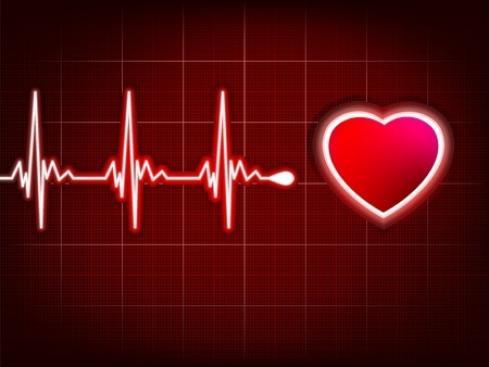 Comment prévenir l'infarctus du myocarde