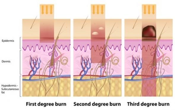 9734c5207bc6 Comment reconnaitre un coup de soleil   - Astuces Pratiques