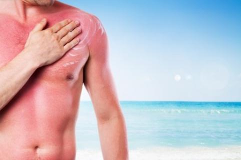 Comment reconnaitre un coup de soleil ? - Astuces Pratiques