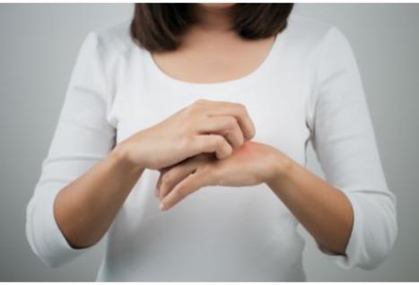 comment traiter l eczema 0