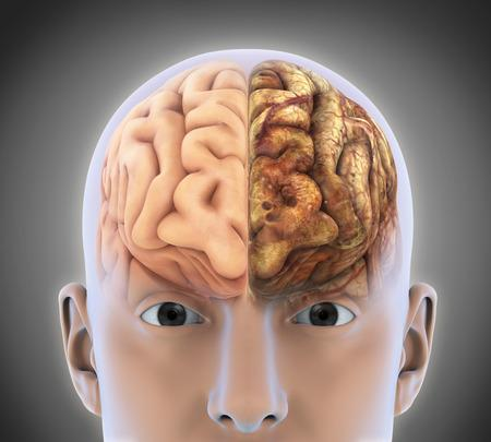 qu est ce que l epilepsie 1