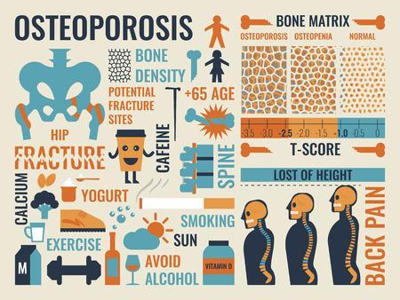 qu est ce que l osteoporose 1