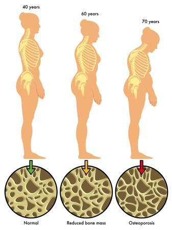 qu est ce que l osteoporose 0