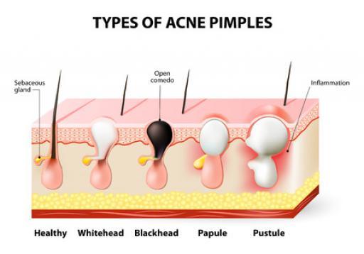 Que faire en cas d'acné d'adulte ?
