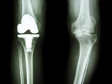 que faire en cas d arthrose du genou 1
