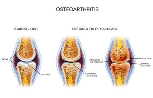 Que faire en cas d'arthrose du genou?