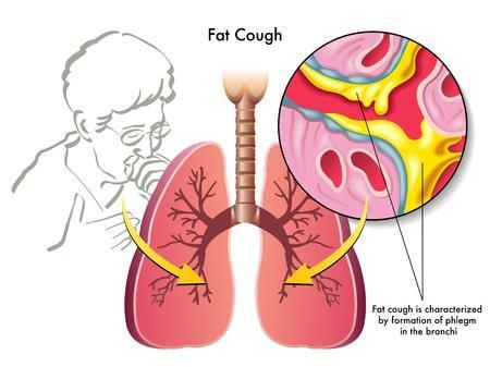 Que faire en cas de bronchite ?