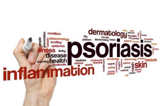 Que faire en cas de psoriasis