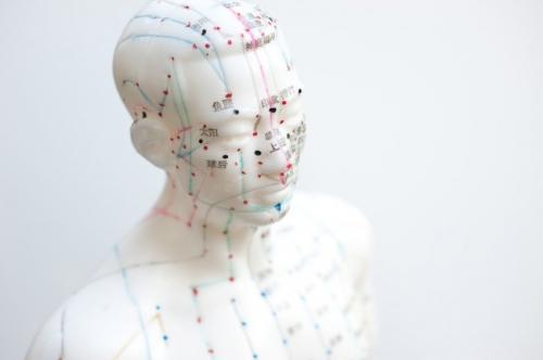 l acupuncture pour avoir une belle peau 1