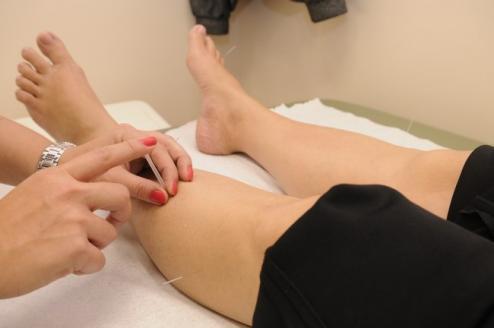 L'acupuncture pour avoir une belle peau